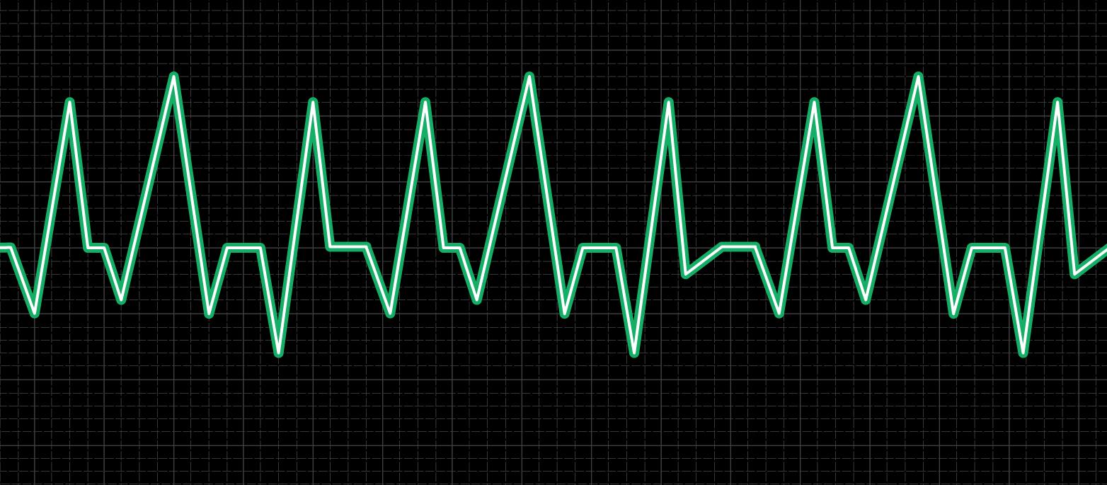 i000563_electrocardiogram